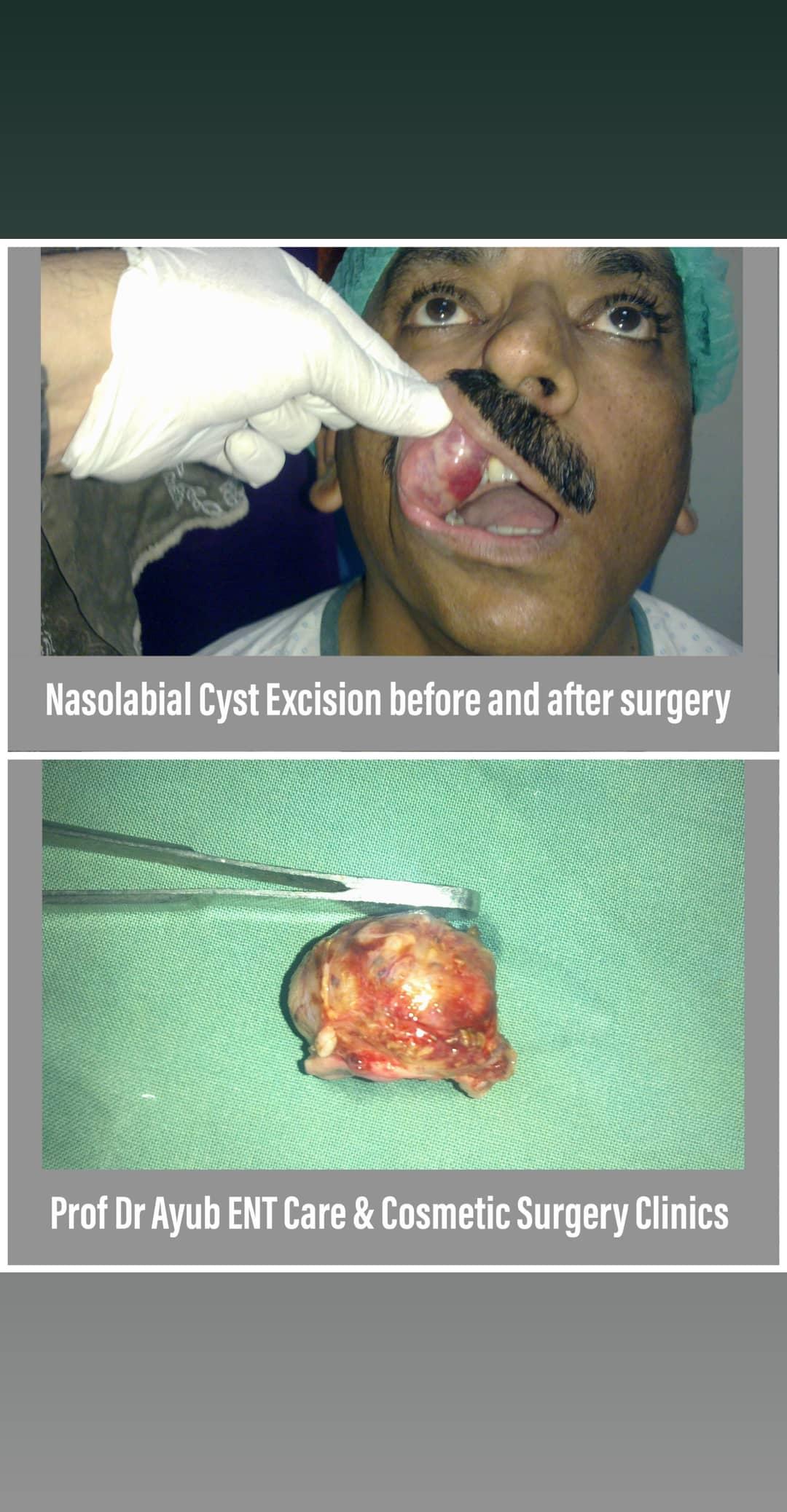 Prof. Dr. Ayub ENT Specialist
